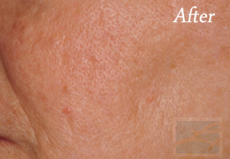 Acne & Acne Scarring Before and After Photos New Orleans - Acne & Acne Scarring Case 22, After