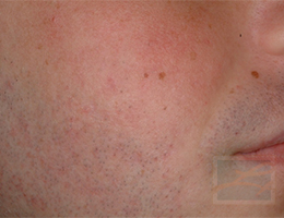 Acne & Acne Scarring Before and After Photos New Orleans - Acne & Acne Scarring Case 24, After