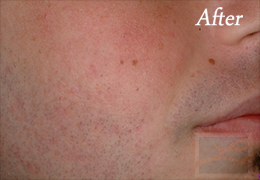Acne Treatments - Case 24, After