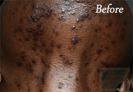 Acne Treatments - Case 25, Before
