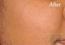 Acne & Acne Scarring Before and After Photos New Orleans - Acne & Acne Scarring Case 26, After