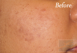 Acne & Acne Scarring Before and After Photos New Orleans - Acne & Acne Scarring Case 26, Before