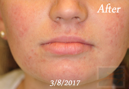Case 26, After, Acne Treatments