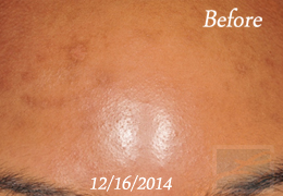 Acne & Acne Scarring Before and After Photos New Orleans - Acne & Acne Scarring Case 27, Before
