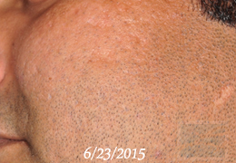 Acne & Acne Scarring Before and After Photos New Orleans - Acne & Acne Scarring Case 28, After
