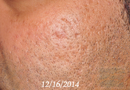 Acne & Acne Scarring Before and After Photos New Orleans - Acne & Acne Scarring Case 28, Before