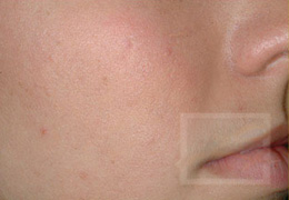 Acne & Acne Scarring Before and After Photos New Orleans - Acne & Acne Scarring Case 3, After