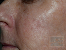 Acne & Acne Scarring Before and After Photos New Orleans - Acne & Acne Scarring Case 30, After