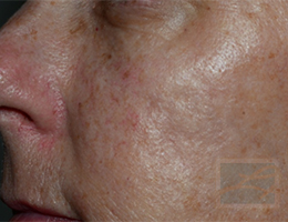 Acne & Acne Scarring Before and After Photos New Orleans - Acne & Acne Scarring Case 30, Before