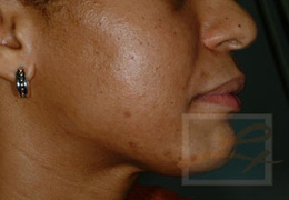 Acne & Acne Scarring Before and After Photos New Orleans - Acne & Acne Scarring Case 4, After