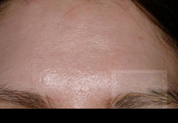 Acne & Acne Scarring Before and After Photos New Orleans - Acne & Acne Scarring Case 5, After