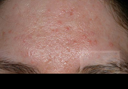 Acne & Acne Scarring Before and After Photos New Orleans - Acne & Acne Scarring Case 5, Before