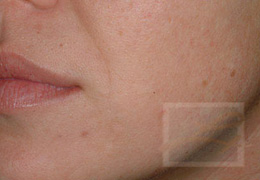 Acne & Acne Scarring Before and After Photos New Orleans - Acne & Acne Scarring Case 8, After