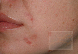 Acne & Acne Scarring Before and After Photos New Orleans - Acne & Acne Scarring Case 8, Before