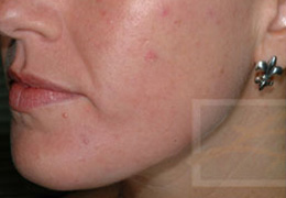 Acne & Acne Scarring Before and After Photos New Orleans - Acne & Acne Scarring Case 9, Before