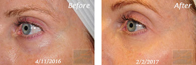 Eyes - Before and After Case 9