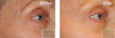 Eyes - Before and After Case 10