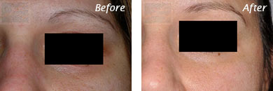 Eyes - Before and After Case 11