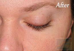 Alphaeon Beauty Eyelash Serum New Orleans  - Case 1, After