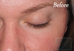 Alphaeon Beauty Eyelash Serum New Orleans  - Case 1, Before