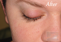 Alphaeon Beauty Eyelash Serum New Orleans  - Case 2, After