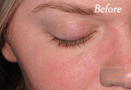 Alphaeon Beauty Eyelash Serum New Orleans  - Case 2, Before