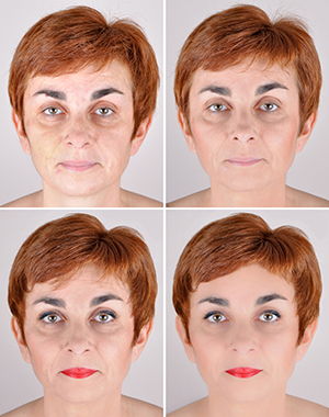 Juvederm filler can enhance the appearance