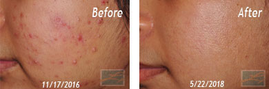 Asian Skins - Fraxel Before/After Image 02