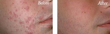 Acne before and after image 1