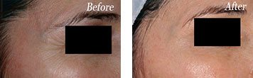 Botox before and after image 3