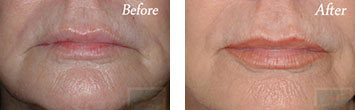 Chemical peels before and after image 1