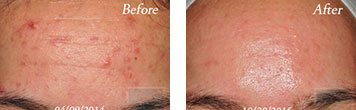 Chemical peels before and after image 3
