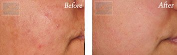 Chemical peels before and after image 2