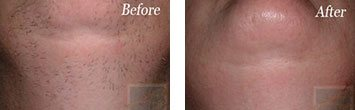 Laser hair removal before and after image 1