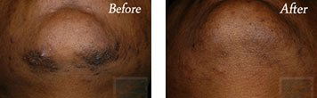Laser hair removal before and after image 2