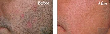 Laser hair removal before and after image 3