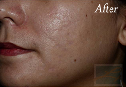 Acne & Acne Scarring Before and After Photos New Orleans - Acne & Acne Scarring Case 31, After