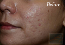 Acne & Acne Scarring Before and After Photos New Orleans - Acne & Acne Scarring Case 31, Before