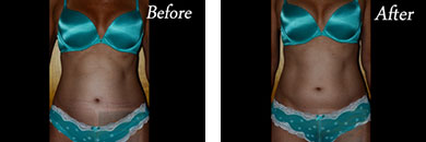 Body contouring - Before after gallery image 1