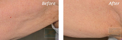 Body Contouring - Before and After Case 4