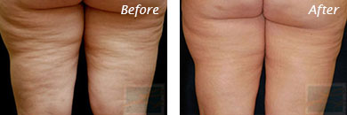 Body Contouring - Before and After Case 5
