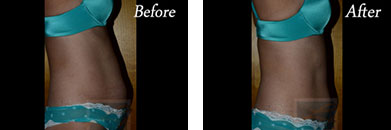 Body contouring - Before after gallery image 2