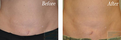 Body contouring - Before after gallery image 5