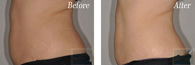 Body contouring - Before after gallery image 7