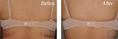 Body contouring - Before after gallery image 9