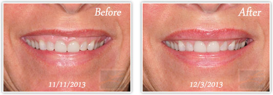Botox for Gummy Smile, Before and After