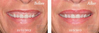 Botox - Before after gallery image 4