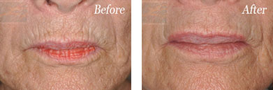Botox - Before after gallery image 12