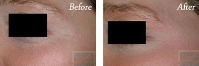 Botox - Before after gallery image 13