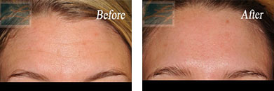 Botox - Before after gallery image 14